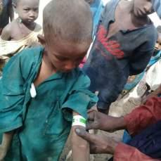 repérage malnutrition